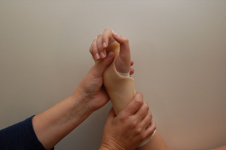 31 Best Hand Therapy Splinting Images On Pinterest