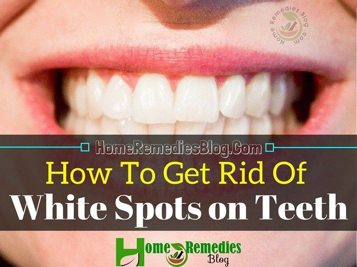 cd94e9e3bd07e913feacc7b92b2f1ec1 - How To Get Rid Of White Spot Lesions On Teeth