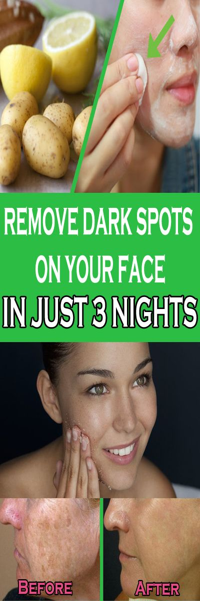 REMOVE DARK SPOTS ON YOUR FACE IN JUST 3 NIGHTS