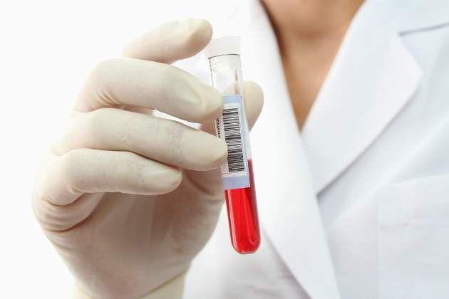 rozbor krvi