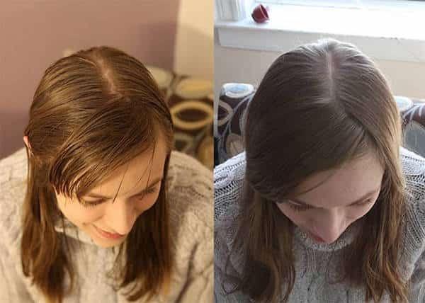 Une fille décide de ne plus utiliser de shampoing pendant 6 mois : le résultat est étonnant