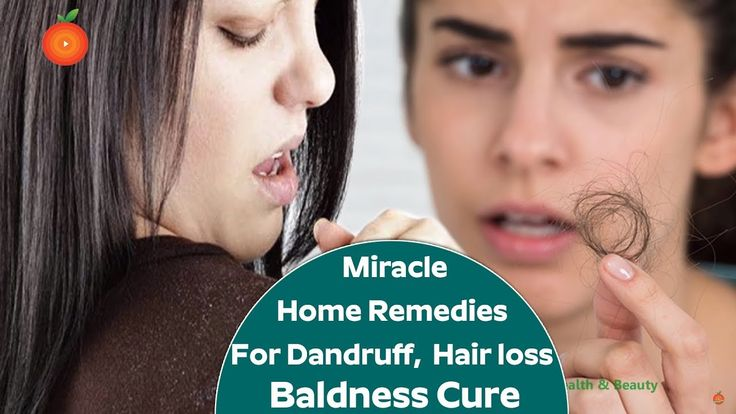 Home Remedies for Dandruff, Hair loss and Baldness Cure