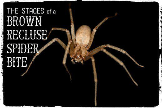 The stages, symptoms, and best treatment for a brown recluse spider bite. All stages take place within 24 hours after the bite. Details and pictures of how to identify and treat.