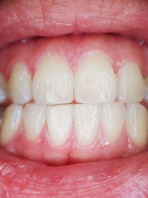 Zahnfleischschwund: Hausmittel gegen Parodontose / Parodontitis – Gilma Jansen-Sánchez