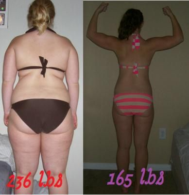 Extreme Weight Loss Before After