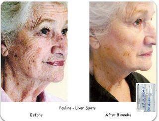 Permanent Results with our Luminesce line.  http://www.kkallinikos.jeunesseglobal.com/