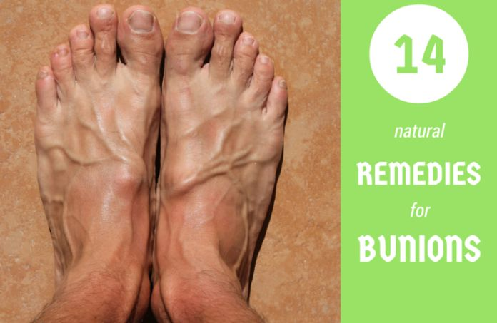 What are bunions? What are the symptoms and causes? Discover top bunions remedies. Learn how to get rid of bunions naturally. Find a relief and treat them from your home.