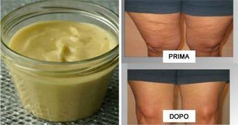 La cellulite è un'infiammazione del tessuto della pelle, creata dai depositi di grasso che formano [Leggi Tutto...]