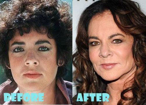 #Change #Increase #minimize #Nose #rhinoplasty #shape