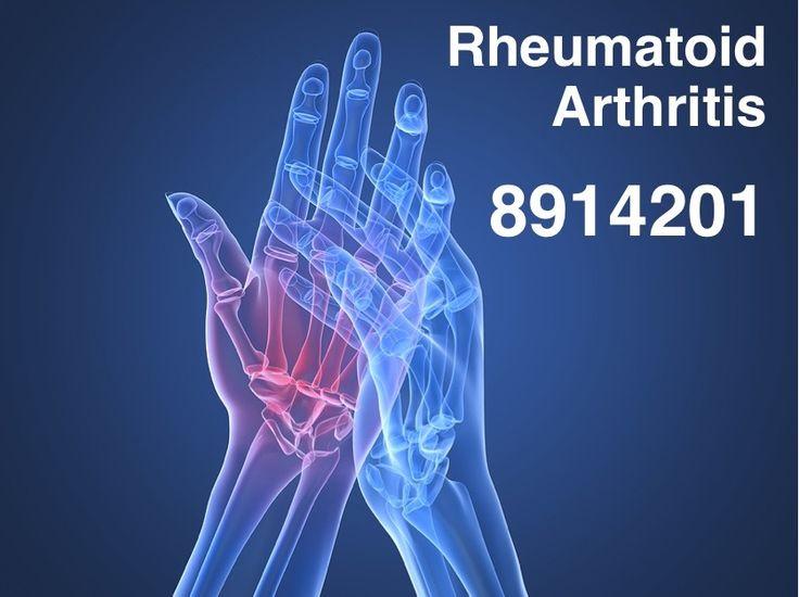 Grabovoi Code for Rheumatoid Arthritis 8914201