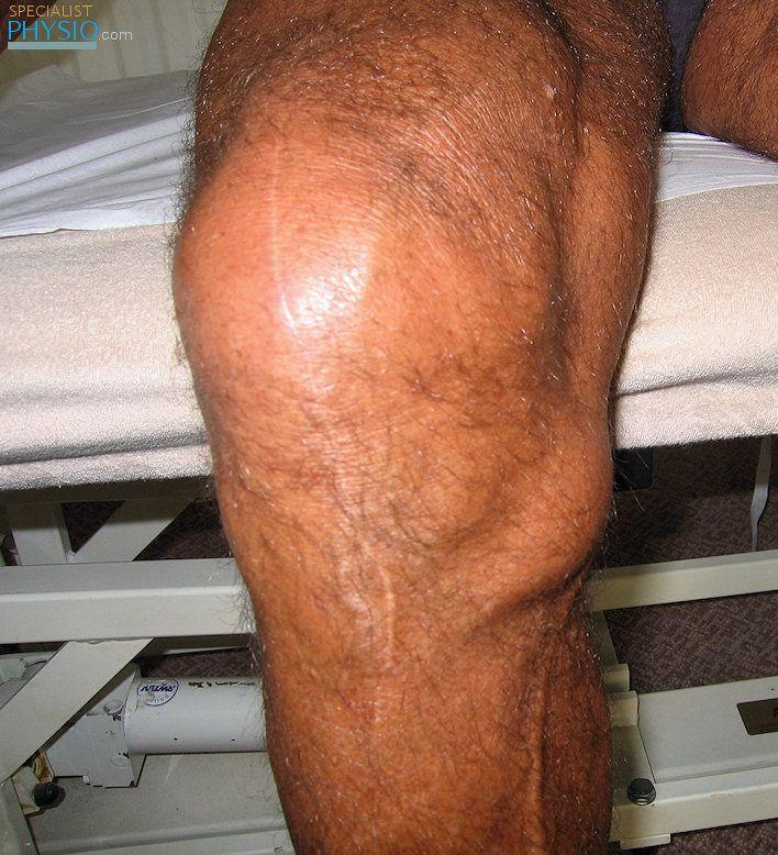 Pes anserine bursitis - inflamed bursa under the pes ...