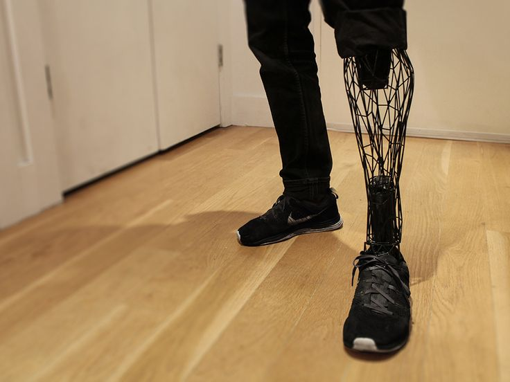 """義肢を扱うBespoke Innovation。低価格の3Dプリンターで義肢をつくっているe-Nable。 そこにウィリアム・ルーツが加わり、超軽量で""""ステルス様式""""の義足を3Dプリントするシステム「Exo」を開発。手足を失うのは、悲劇的でショッキングな出来事だ。複数の企業からなるグループが、3Dプリンターの力でおしゃれとはいえない医療機器のデザイン性を高める取り組みを進めている。"""
