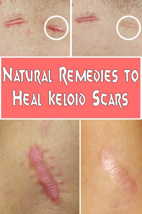 Natural Remedies to Heal Keloid Scars - Glamour 'n' Health