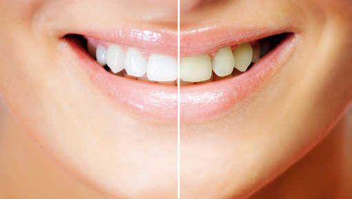 Zelf natuurlijk je tanden bleken, een goed idee? - Body & mind - Nina