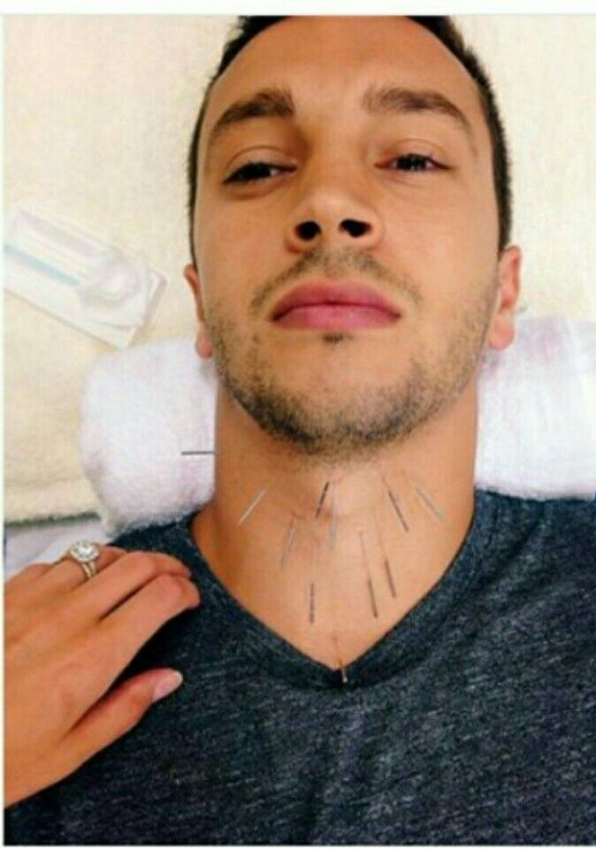 Tyler getting throat acupuncture for singing. Throat acupuncture relaxes the vocal cords and allows for singing to be much more comfortable and easier to control. <<AHHHHHHH