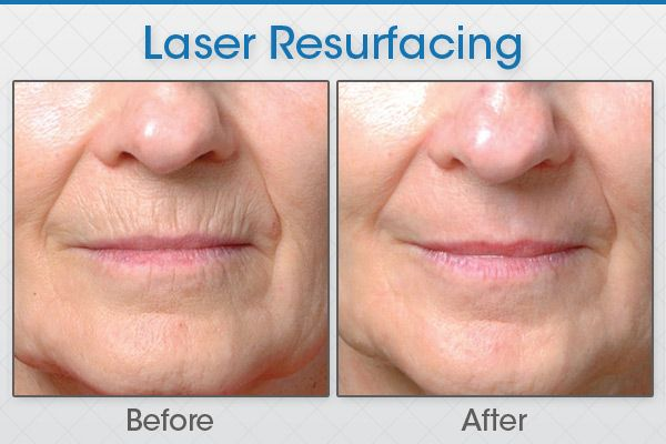Worried About Your Skin Get Expert Advice Carl Mudd Laser Skin Treatment Skin Treatments Skin Care Clinic
