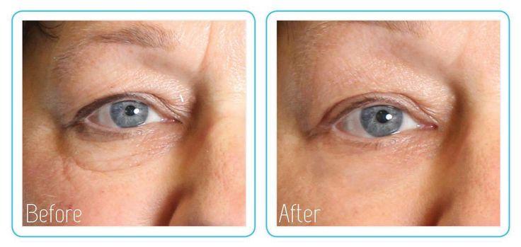 Mooi resultaat van een Dermatude Meta therapy behandeling.  HTTP:// www.schoonheidssalonvlodrop.nl
