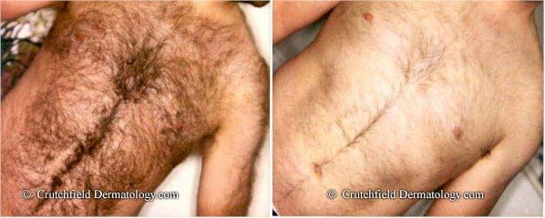 how to stop ingrown hairs after shaving chest