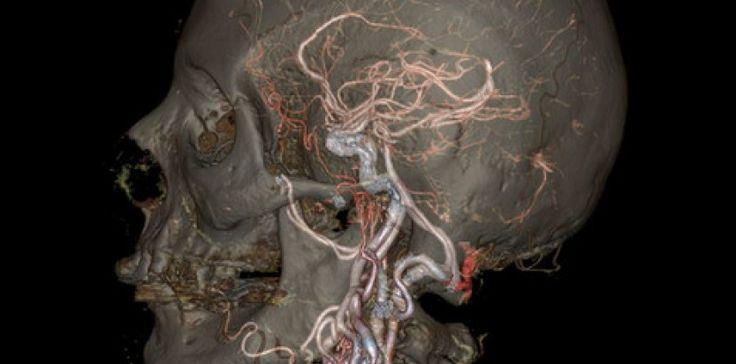 Ces images et GIF de l'intérieur du corps sont d'une incroyable précision grâce à la dernière génération de scanner, testée en Floride. ©GE Healthcare