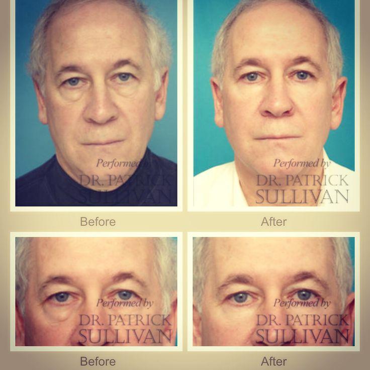 9 Things I Wish I Knew Before Eyelid Surgery - Eyelid ...