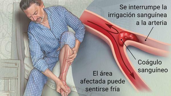 En el cerebro sanguíneo término para coágulo médico
