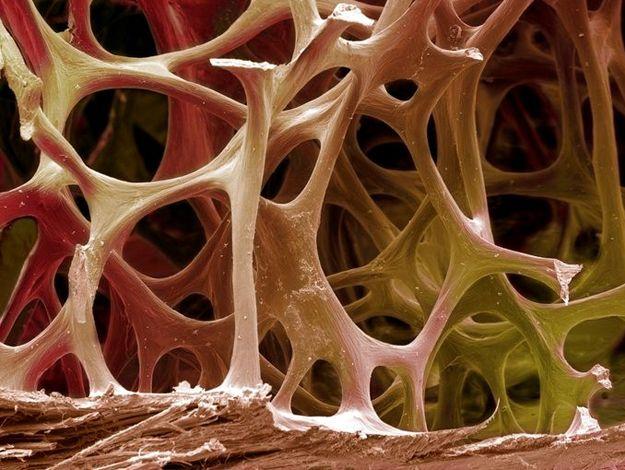 BSIP : IMAGES médicales scientifiques – L'aventure intérieure du corps humain