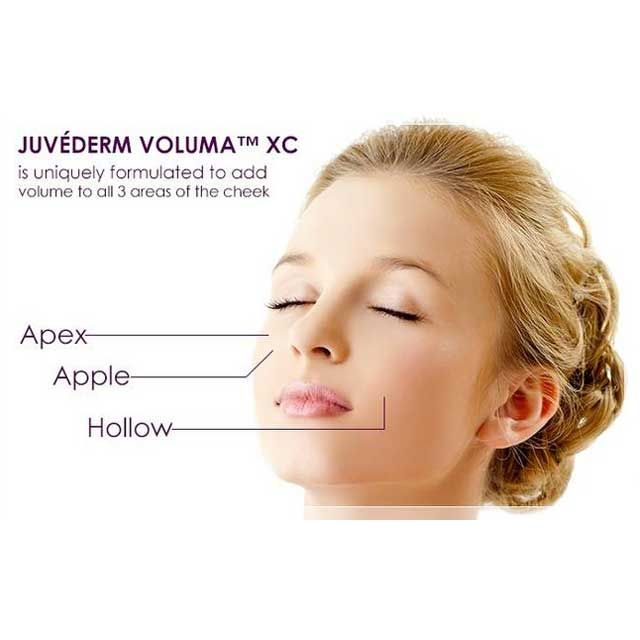 Contact us and we can help you figure out which solution works for you. (602) 957-6000 #juvederm#voluma #sculptra #radiesse #wrinkles #scottsdale#phoenix #arizona #nevada #newmexico #california #utah