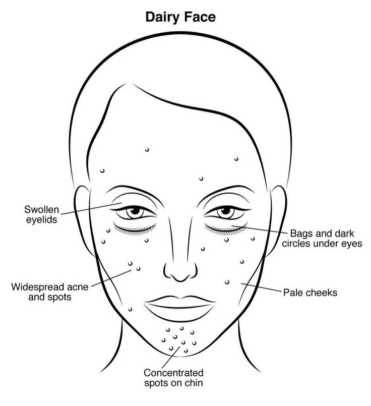 The side effects of using diary products. Swollen eyelids and acne spots.
