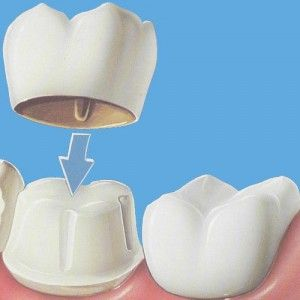Dental Crowns- Cost, Dental Crowns Procedure, Types of Dental Crowns What is a Dental Crown? Dental Crown is a tooth shaped cap that helps to restore an existing tooth to its original form and size and additionally helps in improving its look. Dental Crowns are used to restore broken tooth, support an outsized filling if there isn't enough of the tooth remaining, to shield weak teeth from fracturing, restore broken teeth, or cover badly formed or stained teeth.