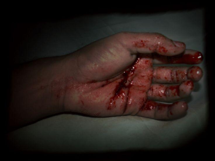 ver mi sangre escurre por el daño que yo misma me hice