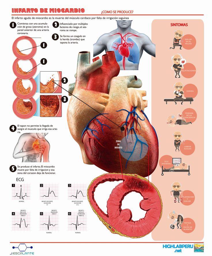 Infarto de Miocardio, avisos a 1 mes antes de su suceso. http://www.highlabperu.net/infarto-de-miocardio-avisos-a-1-mes-antes-de-su-suceso/