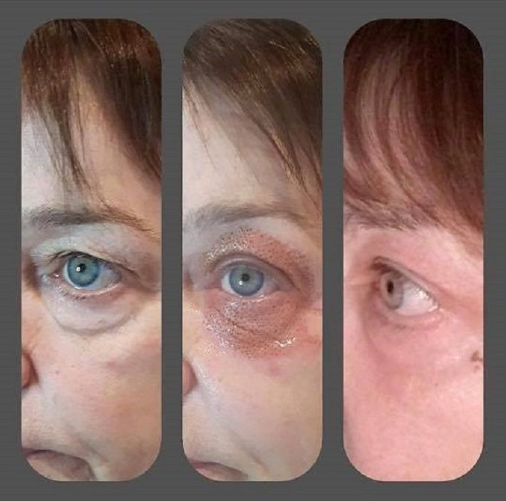 Look At These Amazing Results From Our Fibroblast Plasma Skin Tightening And Refining Ou Skin Tightening Treatments Skin Tightening Procedures Skin Tightening