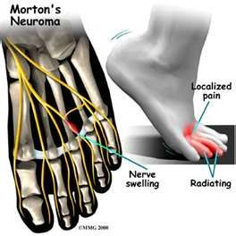 Mortons Neuroma - Revised information and natural pain relief.