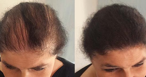 pour-une-pousse-de-cheveux-rapide-essayez-le-secret-des-femmes-indiennes