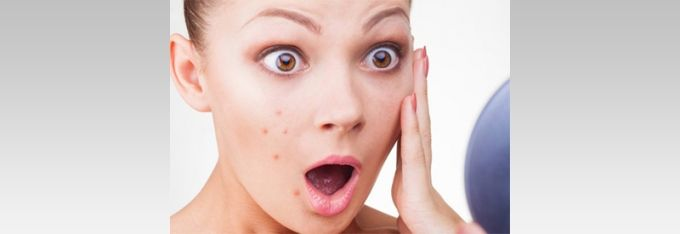 Harley Street Skin Clinic can offer #Chemical #Peeling #Treatment in London with lots of benefits. For those who would love to repair their damaged skin, a chemical peel is a great way to exfoliate and rejuvenate the skin. Contact us today at 020 7436 4441.