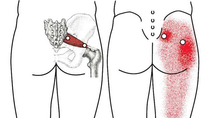 Si estas sufriendo de ciática no dejes de probar estos remedios caseros que harán que desaparezca ese molesto dolor en el nervio.