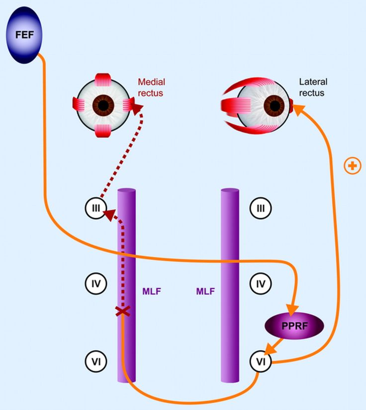 Internuclear Ophthalmoplegia - 1141x1280 - jpeg
