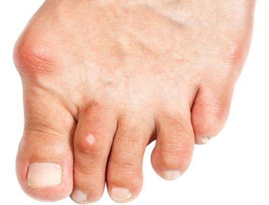 acido urico alto y plaquetas bajas remedio casero acido urico acido urico alto sintomas y tratamiento