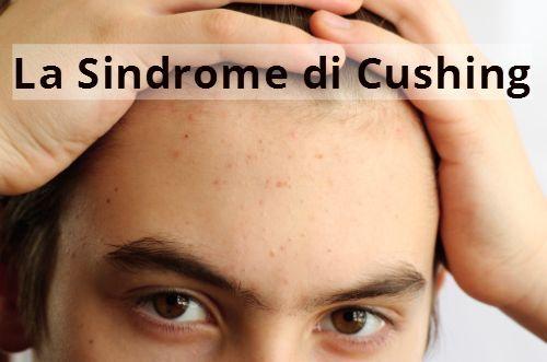 Sindrome di Cushing, i sintomi della malattia rara - http://www.wdonna.it/sindrome-di-cushing-sintomi/73194?utm_source=PN&utm_medium=Gossip&utm_campaign=73194