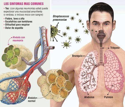 Infecciones Hongos - La neumona es una infeccin producida por bacterias, virus u hongos que perjudican el sistema respiratorio, directamente en los pulmones, haciendo que los alveolos se inflamen a un punto que dificulta la respiracin, provocar tos y fiebre. Comnmente la padecen los mayores de 65 aos y hasta menores de 2 aos. Investigadora Médica, Nutricionista, Consultora de Salud y Ex Paciente de Infecciones por Hongos Le Enseña