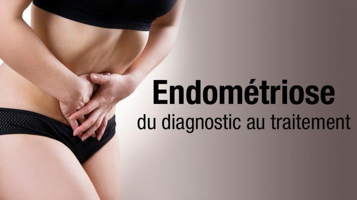 Chez les femmes atteintes d'endométriose, le tissu endométrial recouvrant la paroi utérine, se développe dans d'autres parties de la cavité abdominale (trompes, ovaires…) et parfois même dans des organes non génitaux (côlon, intestins…). Ce tissu réagit aux fluctuations hormonales du cycle menstruel. Ainsi ces nodules d'endométriose saignent chaque mois provoquant des douleurs pelviennes, douleurs pendant les rapports, des règles plus abondantes et parfois aussi des troubles digestifs et…