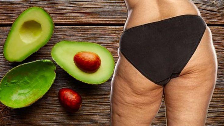 Como Combatir La Celulitis Usando la Semilla Del Aguacate