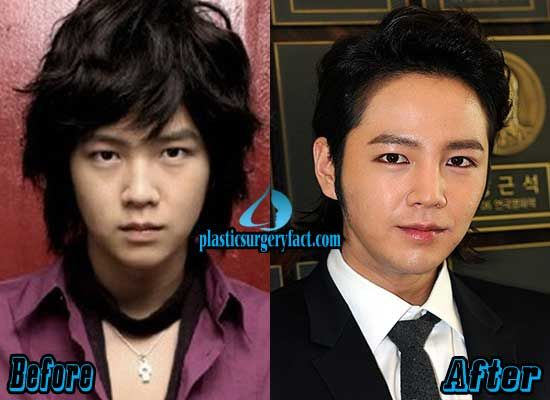 Jang Geun Suk Plastic Surgery Before and After | plasticsurgeryfac…