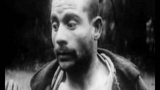 Videos of shells shock victims from the Great War (disturbing)
