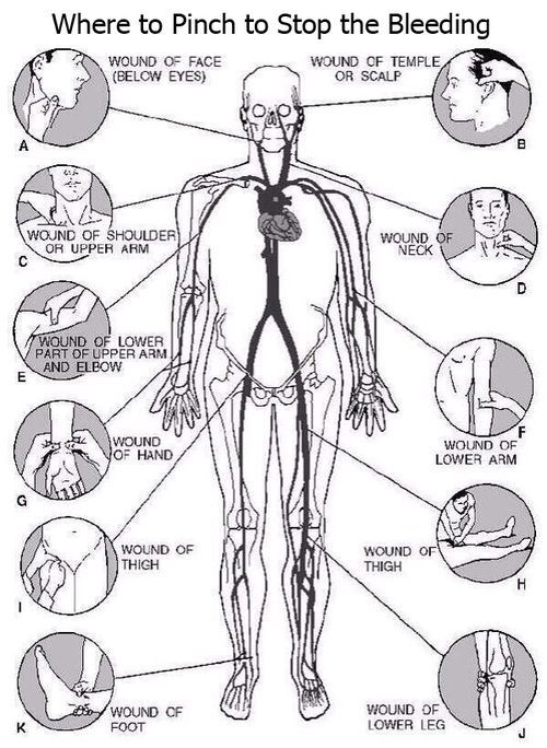 This diagram could save someone's life!.