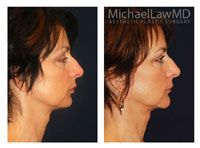 Neck Liposuction / Chin Liposuction Patient 2 - Michael Law MD Raleigh Plastic Surgery, Raleigh Plastic Surgeon, Plastic Surgeon Raleigh, Cosmetic Surgeon, Plastic Surgery NC, Raleigh Med Spa, The Plastic Surgery Center, Neck lift, Chin Liposuction, lower facial rejuvenation, Raleigh facelift, facelift, facial plastic surgery