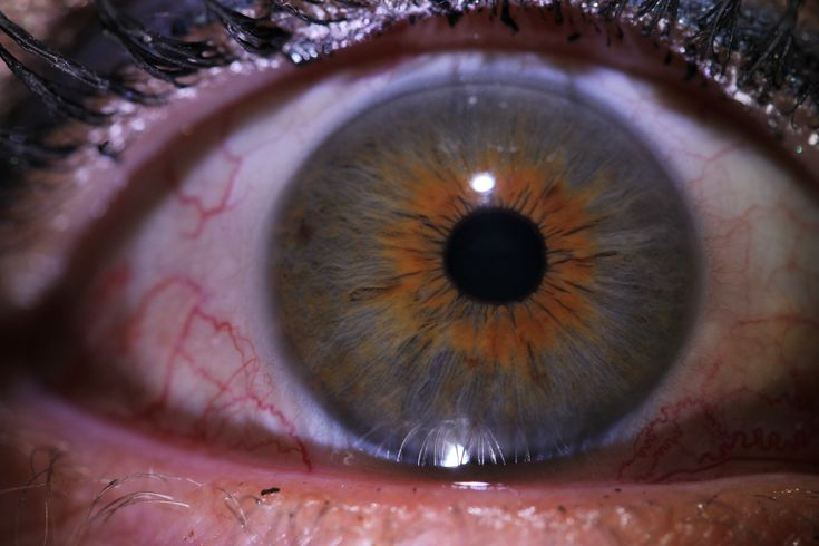 """une réaction inflammatoire visible à la périphérie de le pupille en forme de """"soleil""""."""