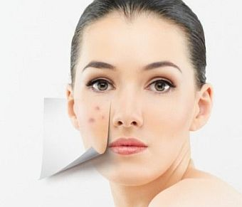 Acne Diet Link Exposed: A Natural Acne Cure that Works