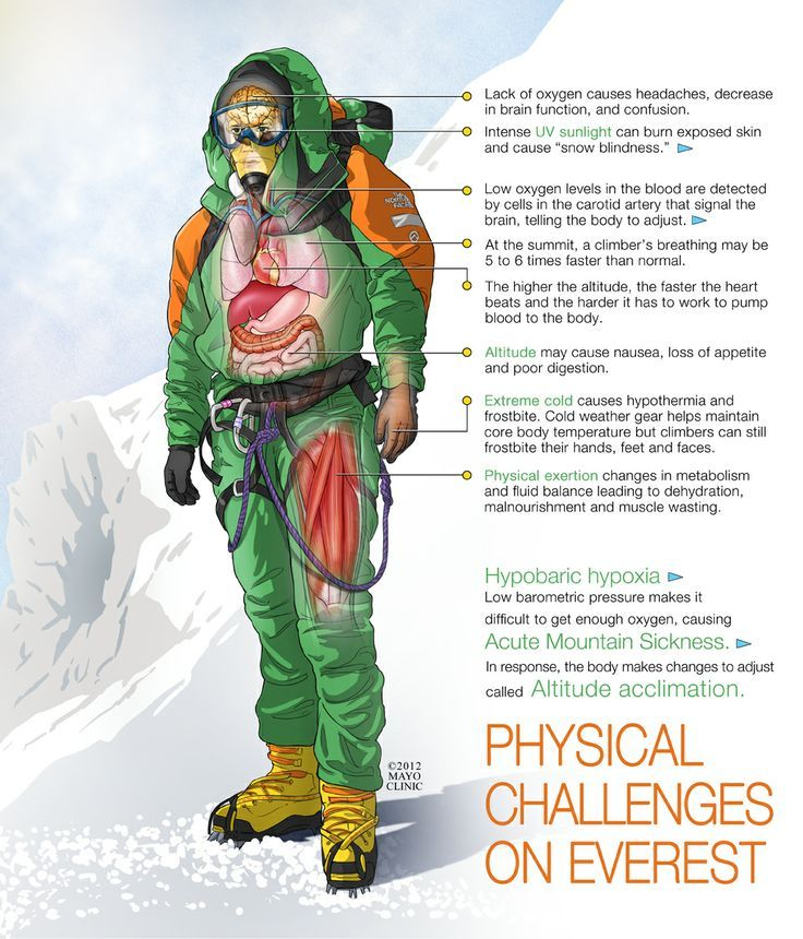 Infographic of Physical Challenges Climbing Everest from ...