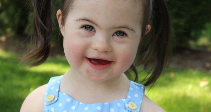 12 Common Misconceptions About Down's Syndrome